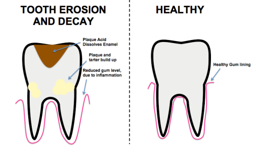 emanel erosion costa rica dental prices